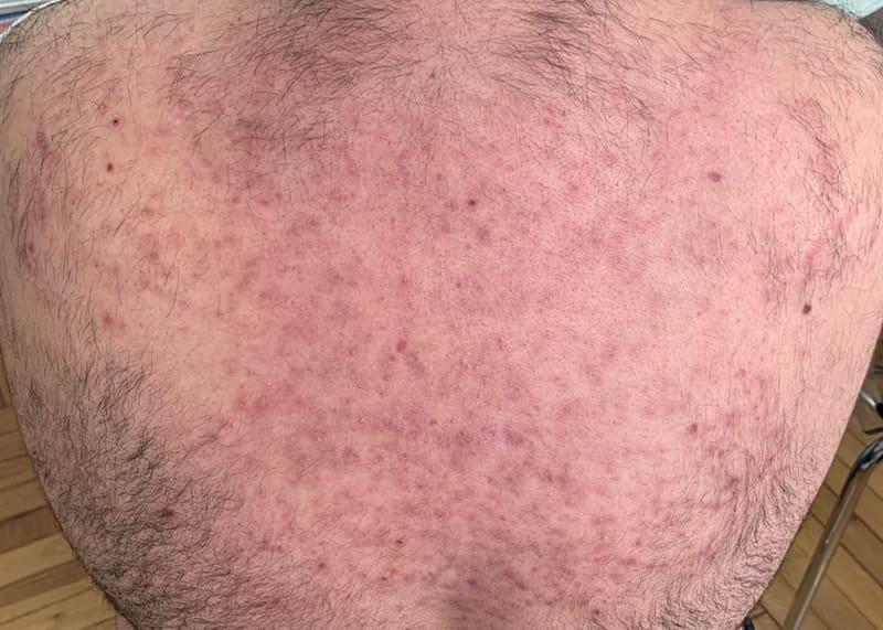 acné despues